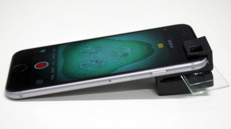 Di Tangan Ilmuwan, Ponsel Bisa jadi Mikroskop