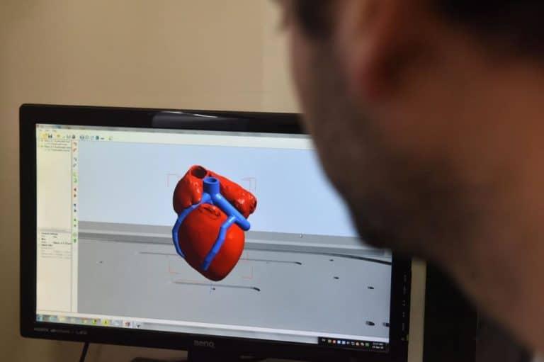 Ilmuwan Israel Berhasil Bikin Jantung Buatan, Dicetak 3D