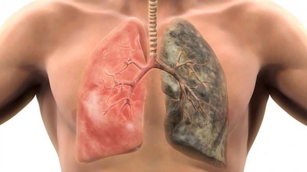 Google Latih AI untuk Mendeteksi Kanker Paru-paru