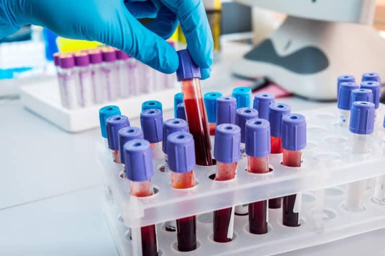 Tes Darah Terbaru Ini Bisa Deteksi 20 Jenis Kanker