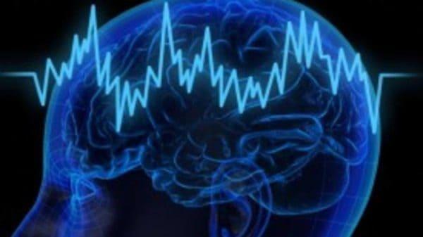 Pendarahan Otak
