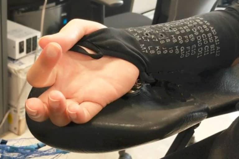 "Ilmuwan Ciptakan ""Lengan Bionik"" untuk Penderita Lumpuh"