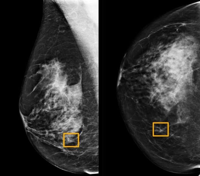 AI Google Deteksi kanker payudara