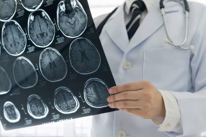 Penderita stroke sembuh